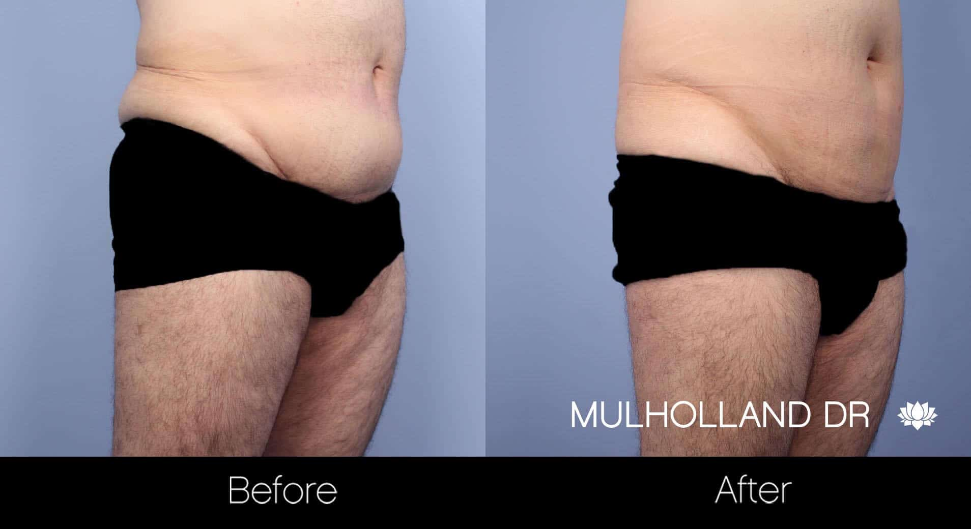 Male Tummy Tuck (Belt Lipectomy) - Before and After Gallery – Photo 7