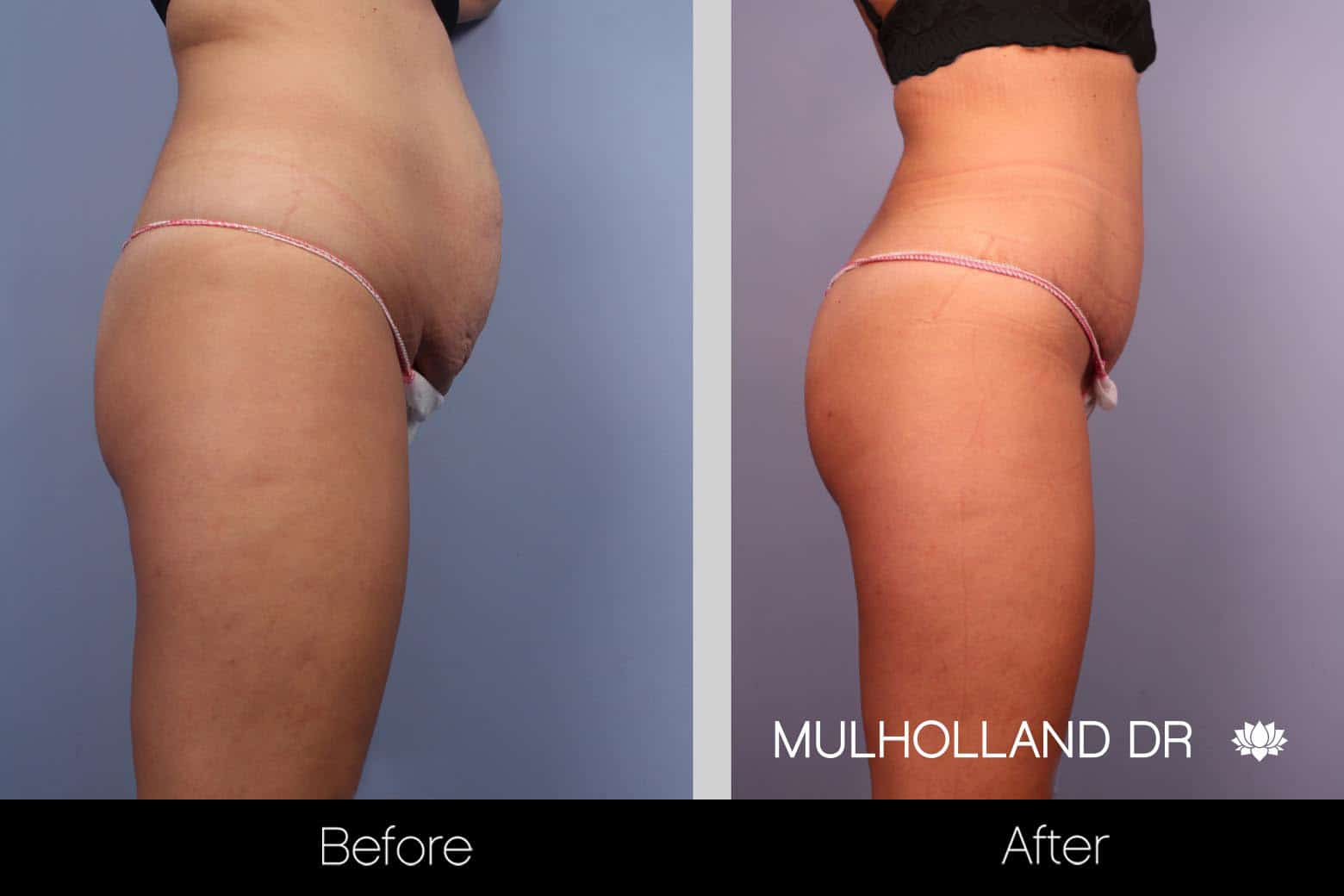 Mini Tummy Tuck - Before and After Gallery – Photo 7