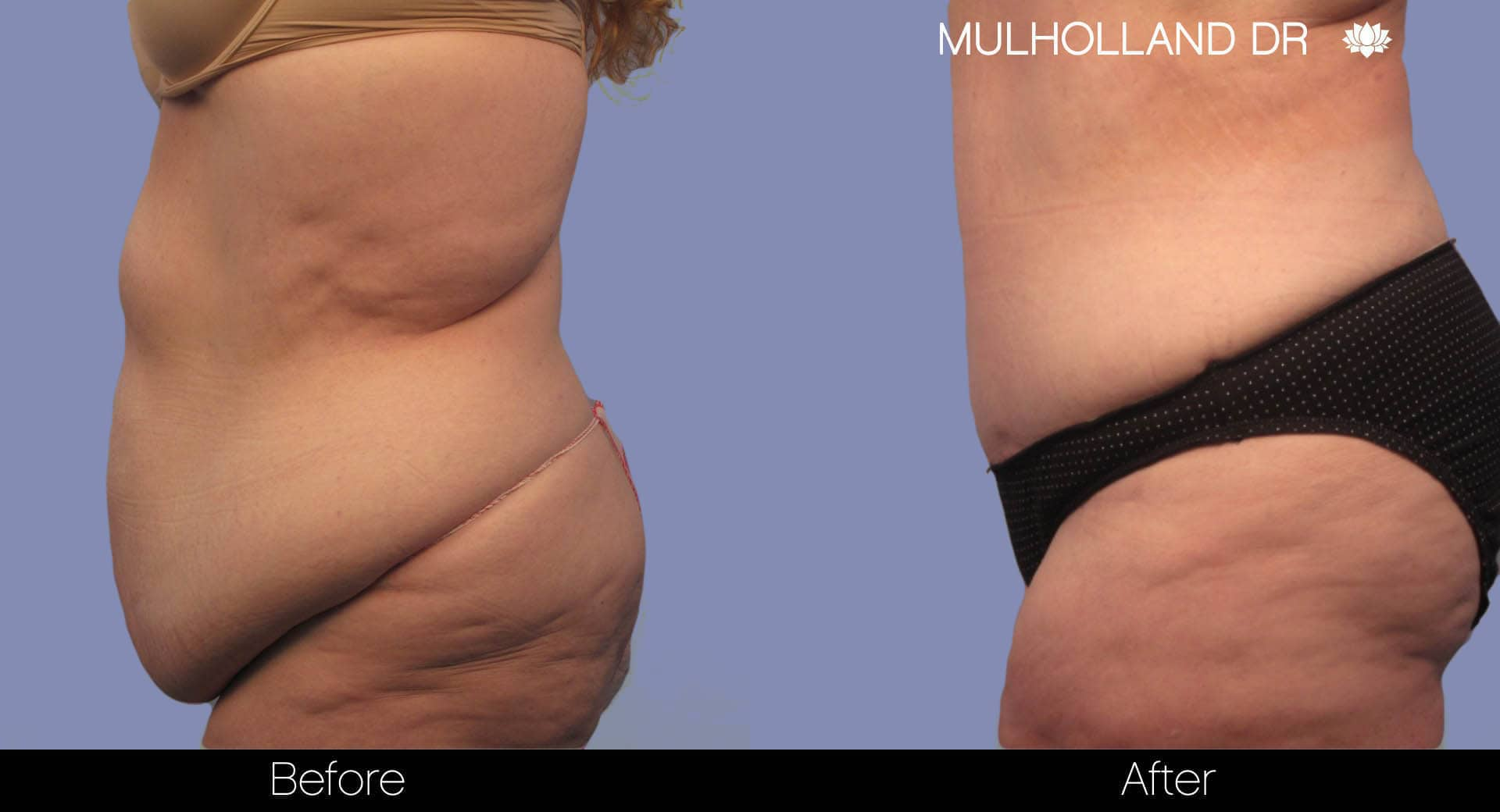 Tumescent Liposuction - Before and After Gallery – Photo 7