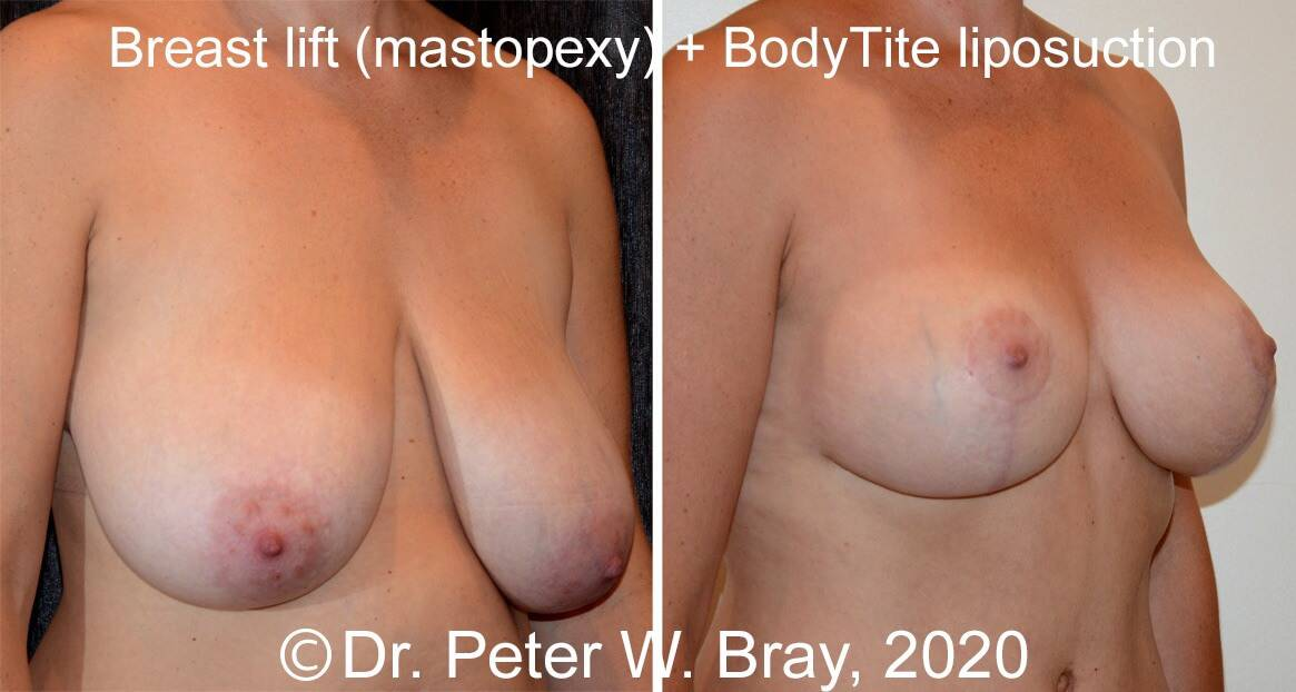 Breast Reduction - Before and After Gallery – Photo 7