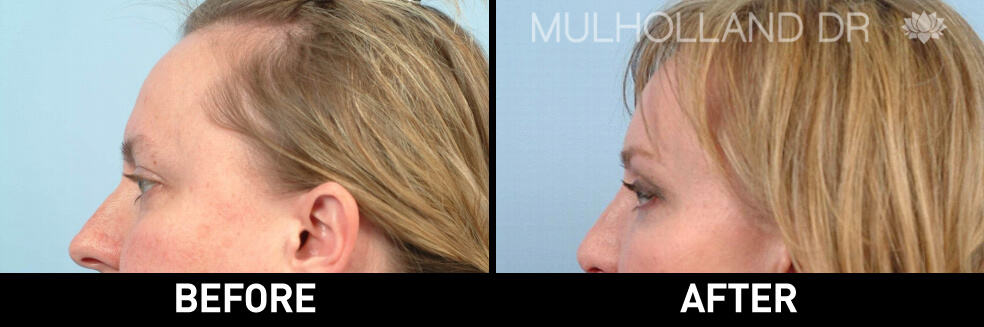 Brow Lift - Before and After Gallery – Photo 7