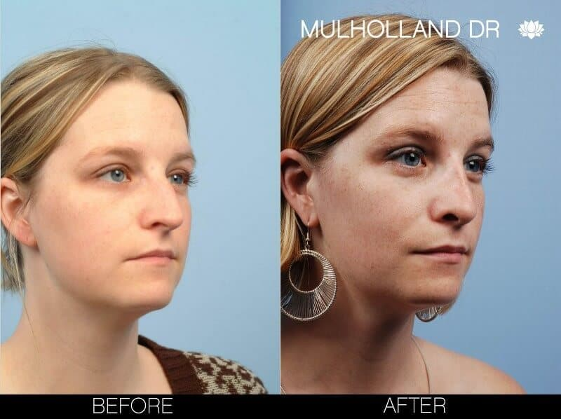 Rhinoplasty - Before and After Gallery – Photo 7