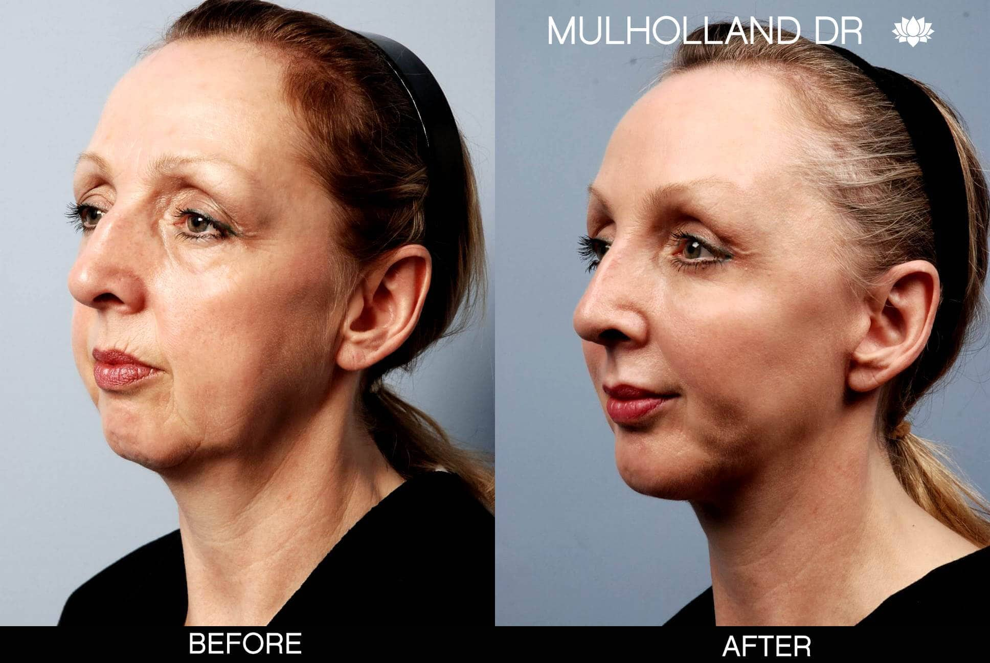Facial Fat Transfer - Before and After Gallery – Photo 9