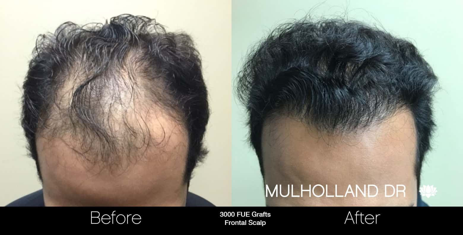 FUE Hair Male - Before and After Gallery – Photo 7