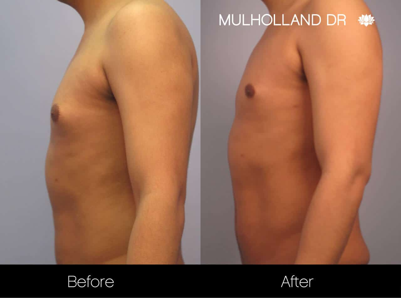 Gynecomastia Surgery (Male Breast Reduction) - Before and After Gallery – Photo 10
