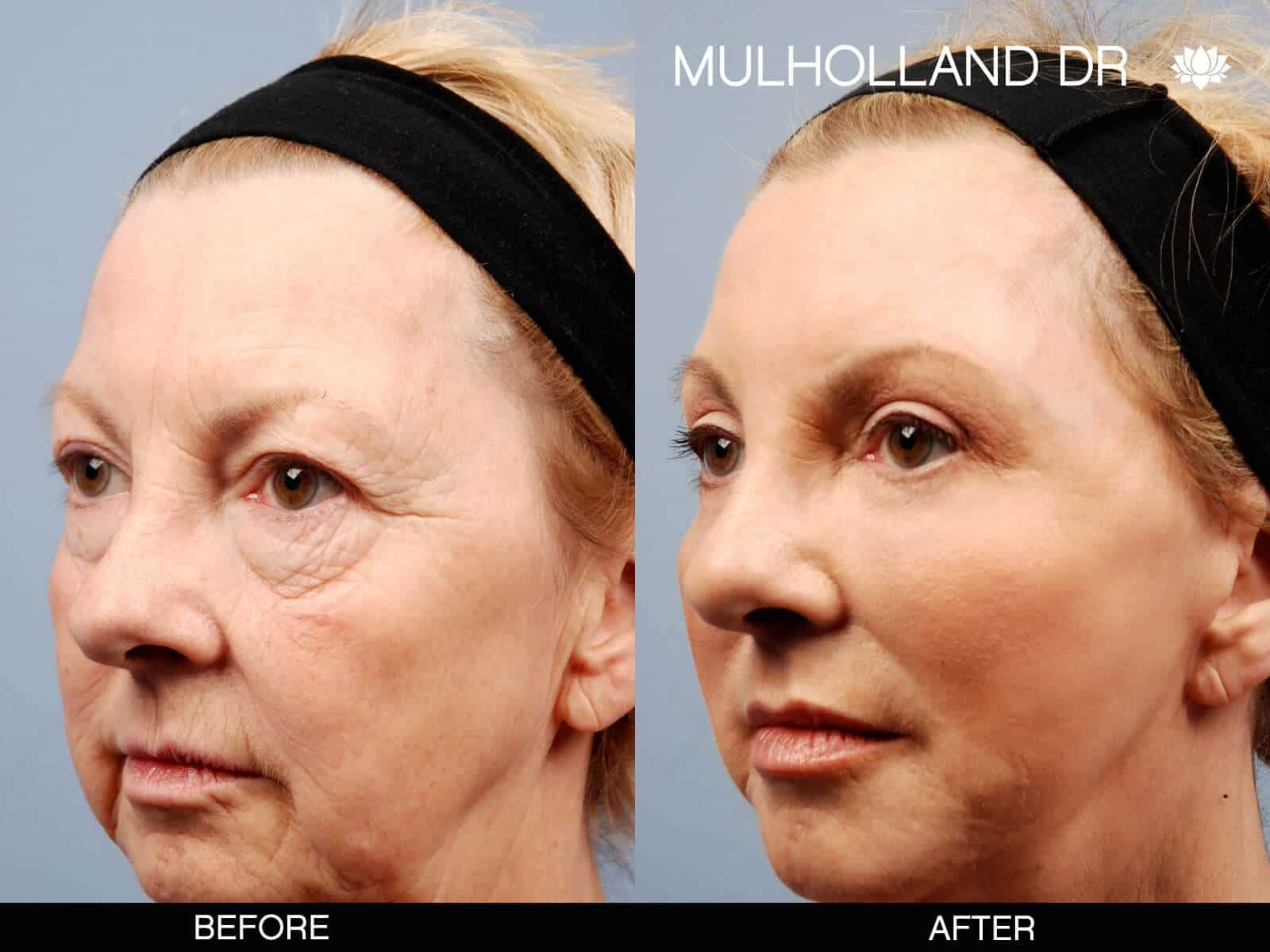 Cheek Lift - Before and After Gallery – Photo 17