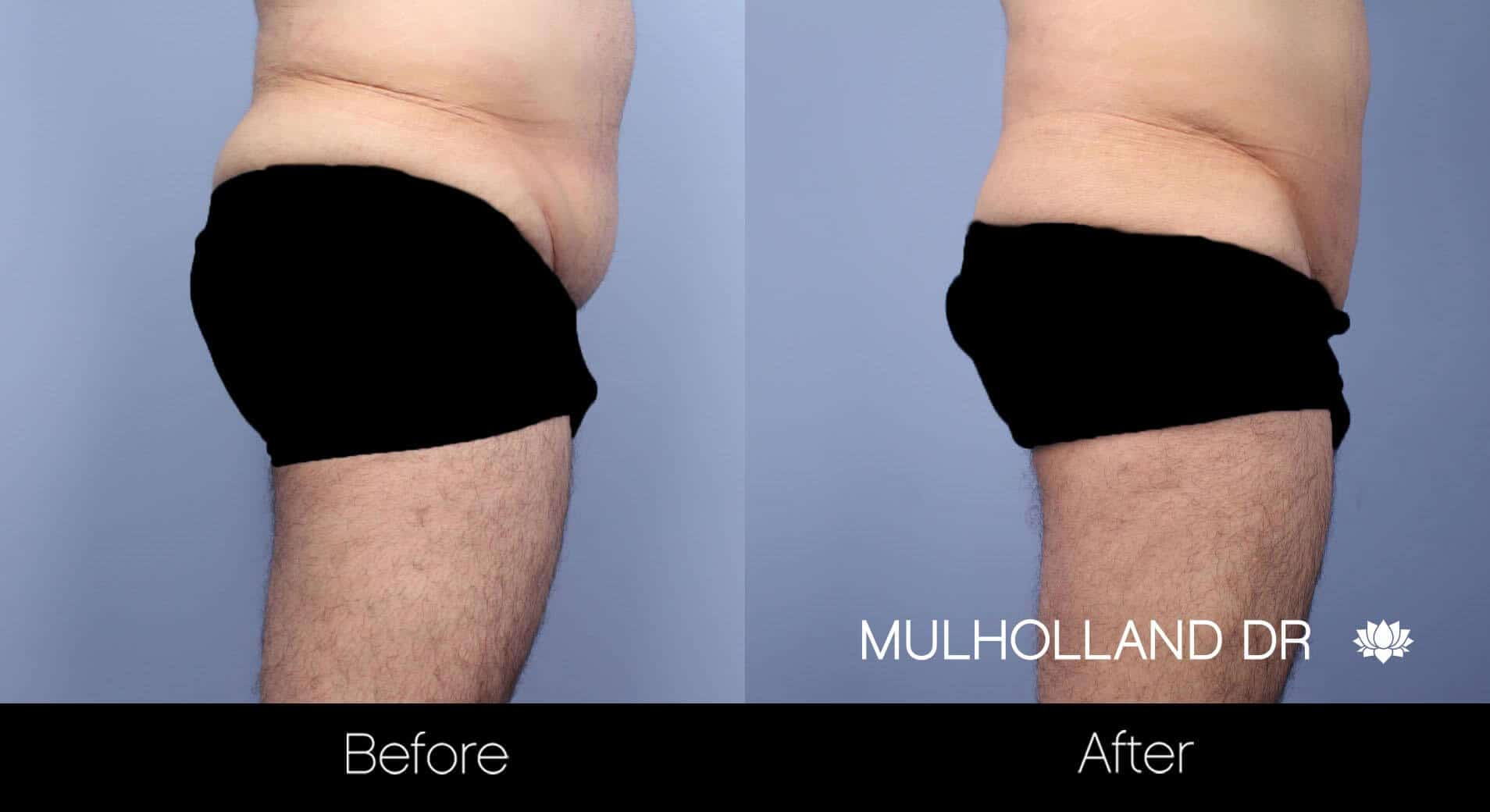 Male Tummy Tuck (Belt Lipectomy) - Before and After Gallery – Photo 8