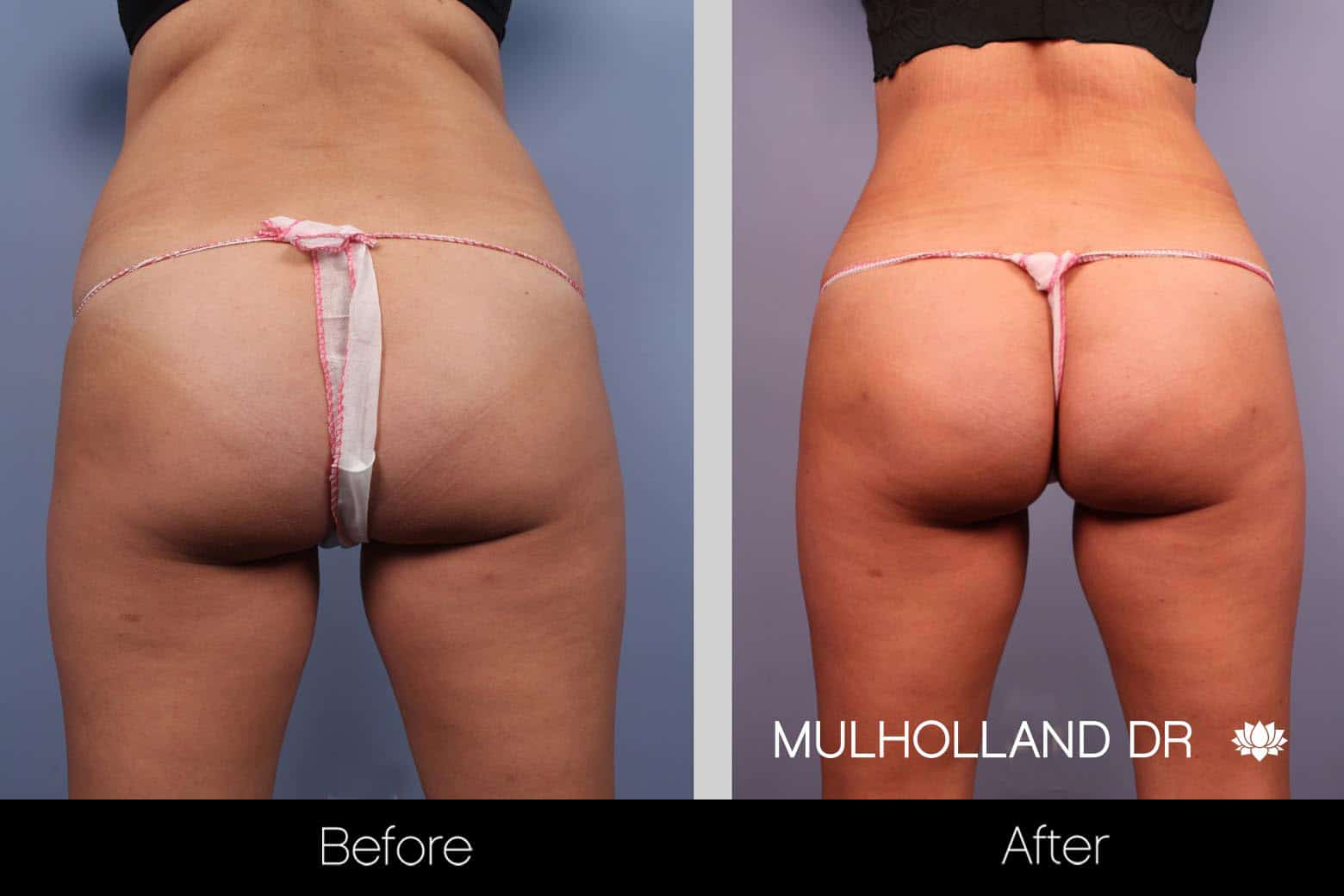 Mini Tummy Tuck - Before and After Gallery – Photo 8