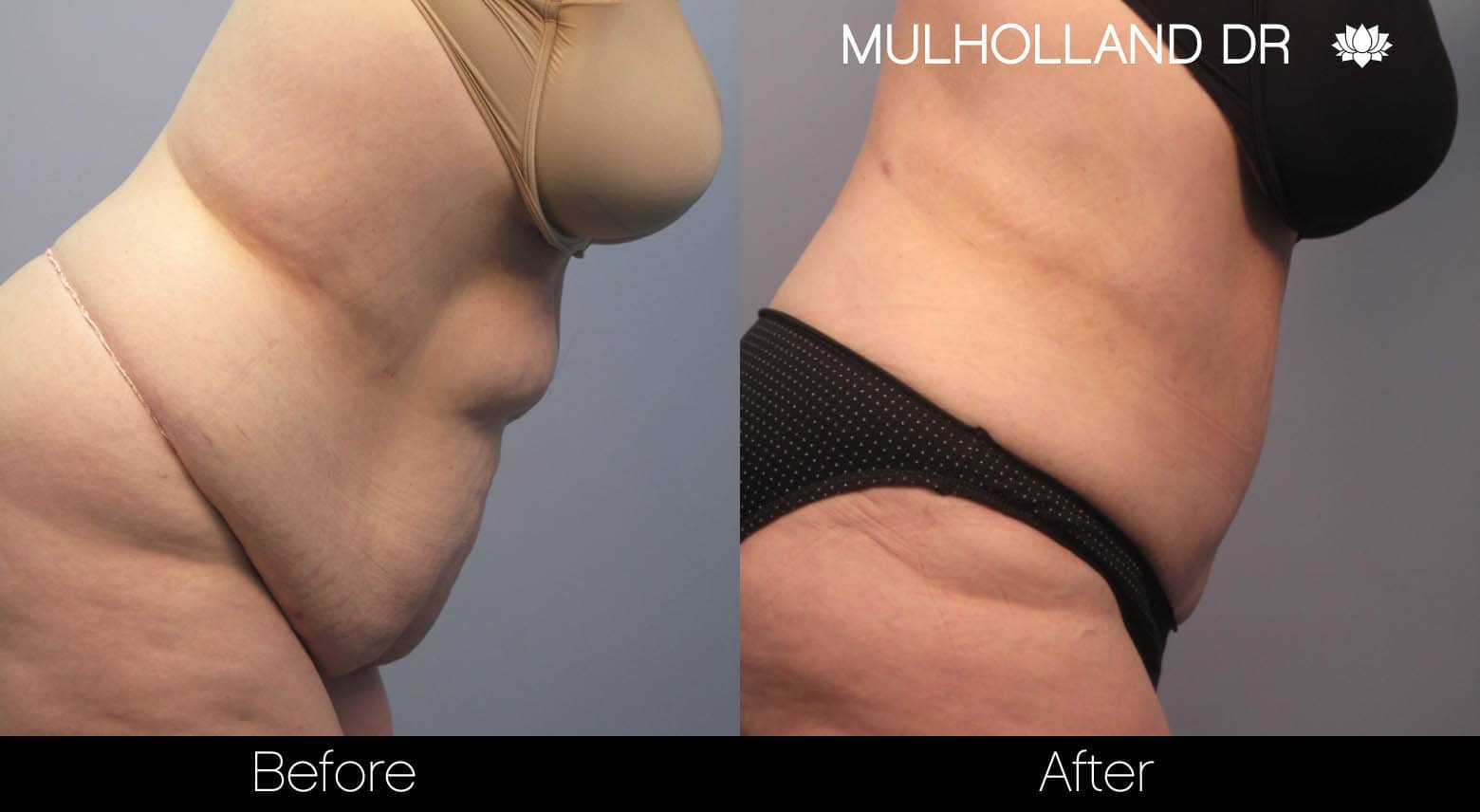 Tumescent Liposuction - Before and After Gallery – Photo 8