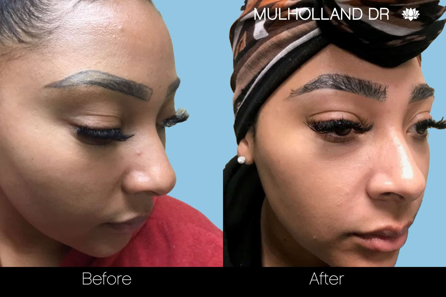Eyebrows FUE - Before and After Gallery – Photo 8