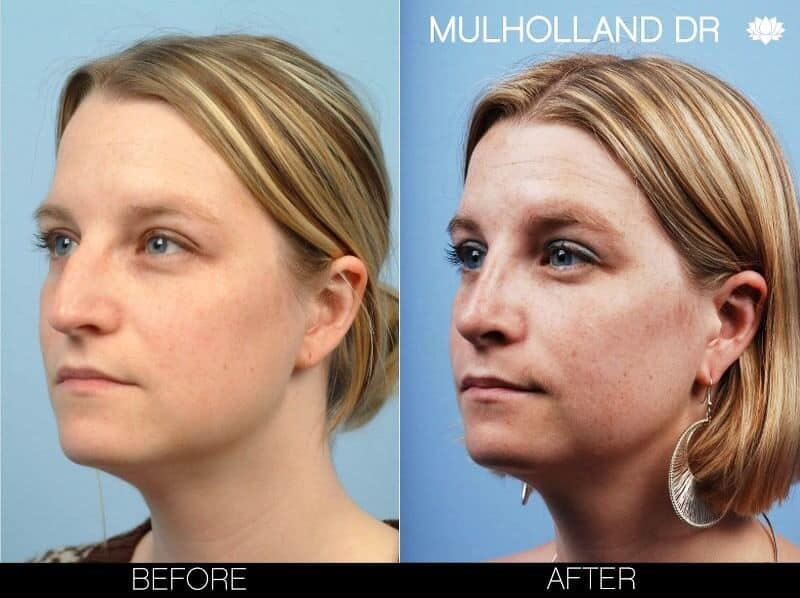 Rhinoplasty - Before and After Gallery – Photo 8