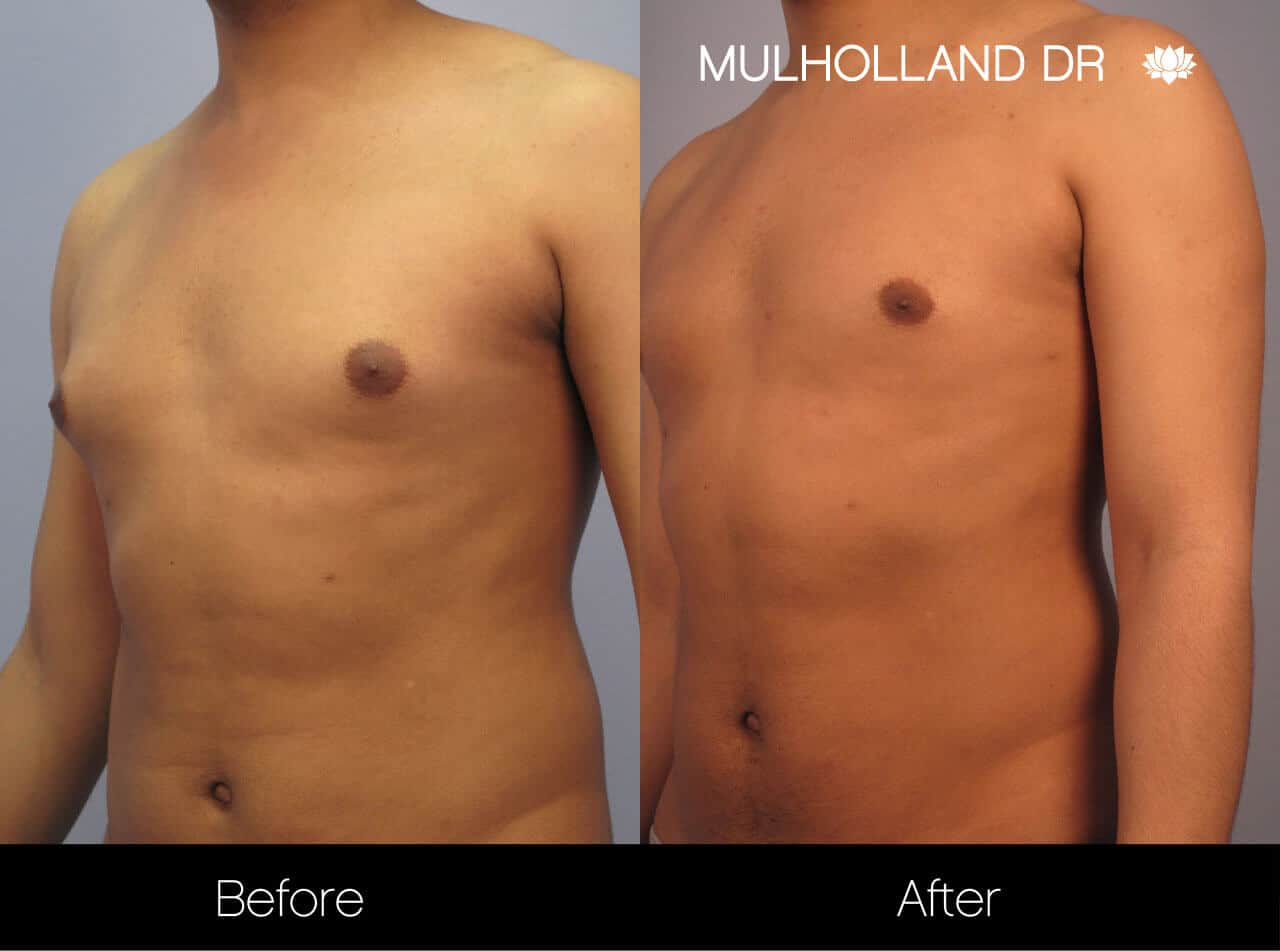 Gynecomastia Surgery (Male Breast Reduction) - Before and After Gallery – Photo 11