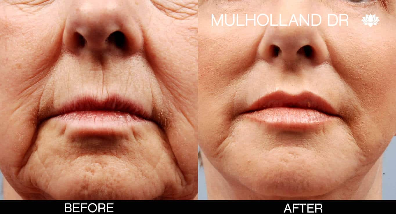 Cheek Lift - Before and After Gallery – Photo 18