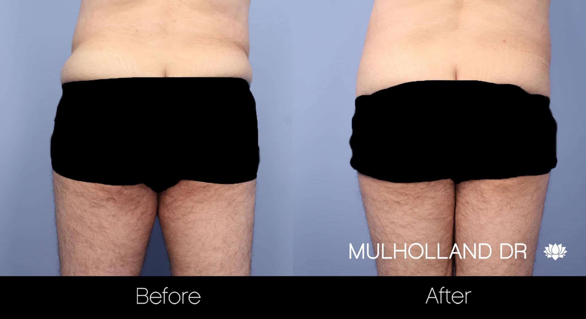 Male Tummy Tuck (Belt Lipectomy) - Before and After Gallery – Photo 9