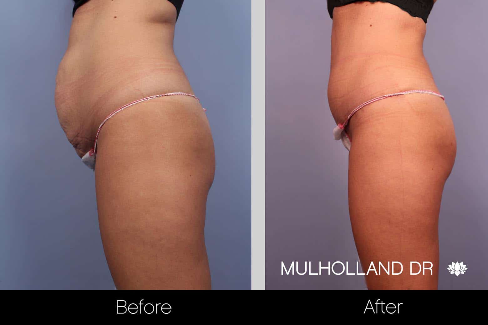 Mini Tummy Tuck - Before and After Gallery – Photo 9