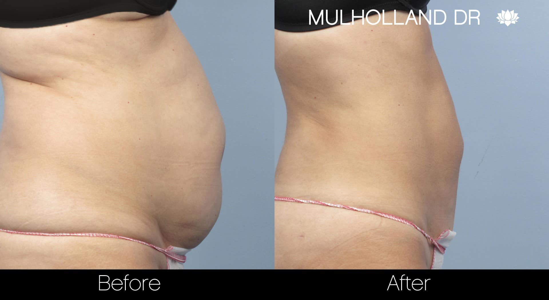 Tumescent Liposuction - Before and After Gallery – Photo 9