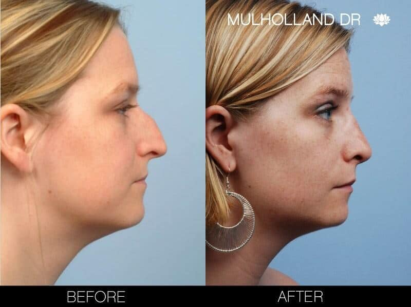 Rhinoplasty - Before and After Gallery – Photo 9