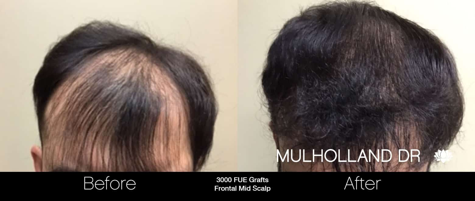FUE Hair Male - Before and After Gallery – Photo 9
