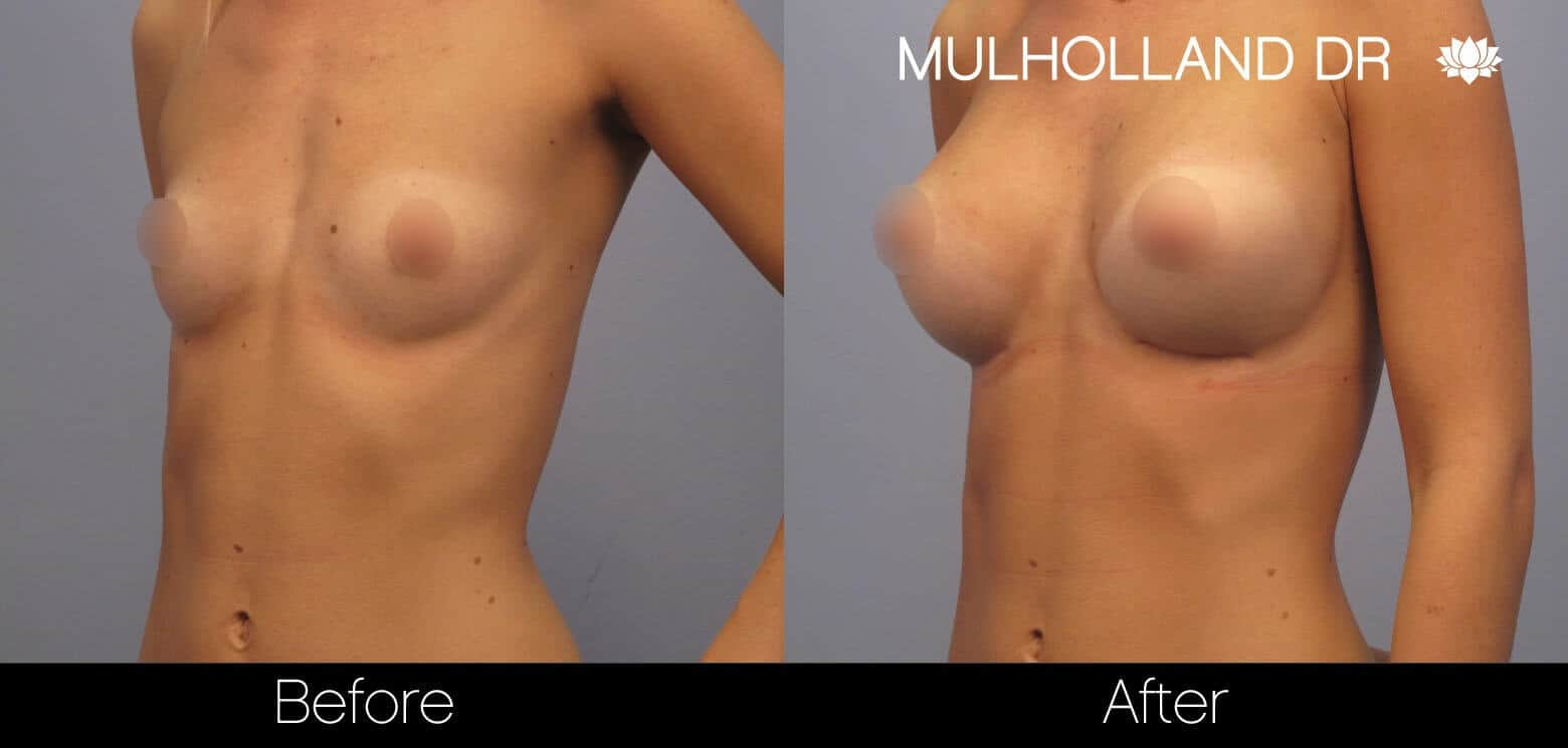 Breast Augmentation - Before and After Gallery – Photo 10