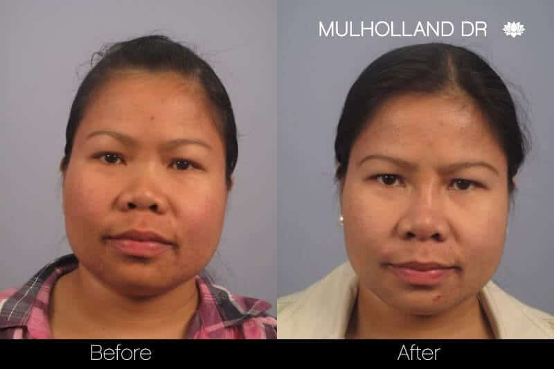 Non Surgical 5 Minute Nose Job In Toronto Spamedica