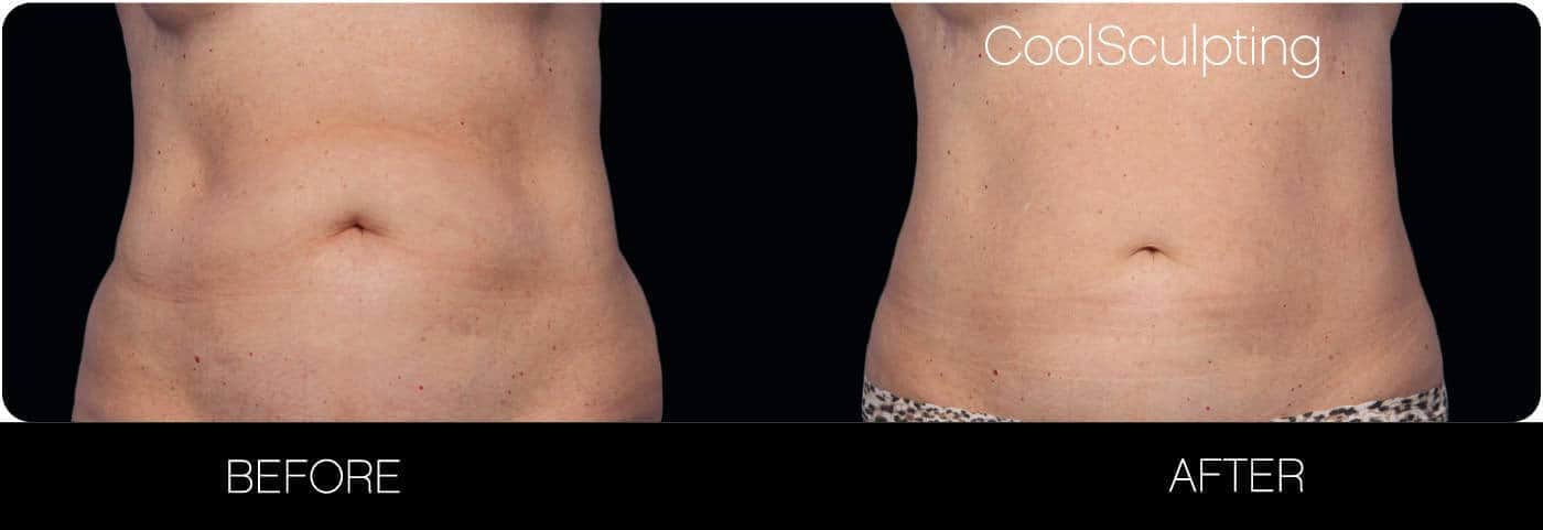 CoolSculpting - Before and After Gallery – Photo 11
