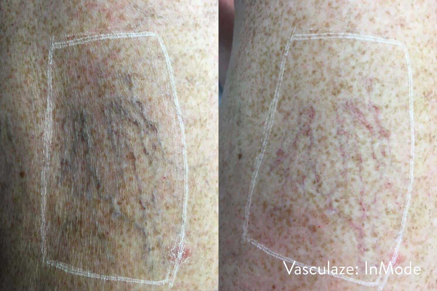 Leg Vein Reduction - Patient Before and After Gallery – Photo 11