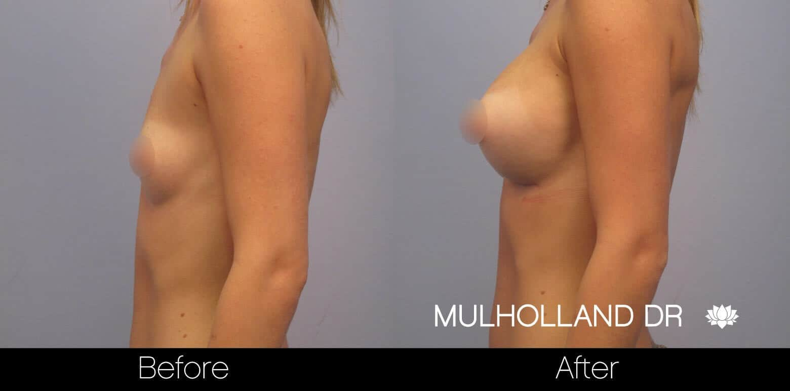 Breast Augmentation - Before and After Gallery – Photo 11