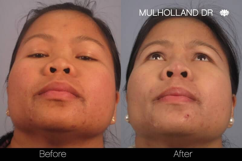 5 Minute Nose Job - Before and After Gallery – Photo 12