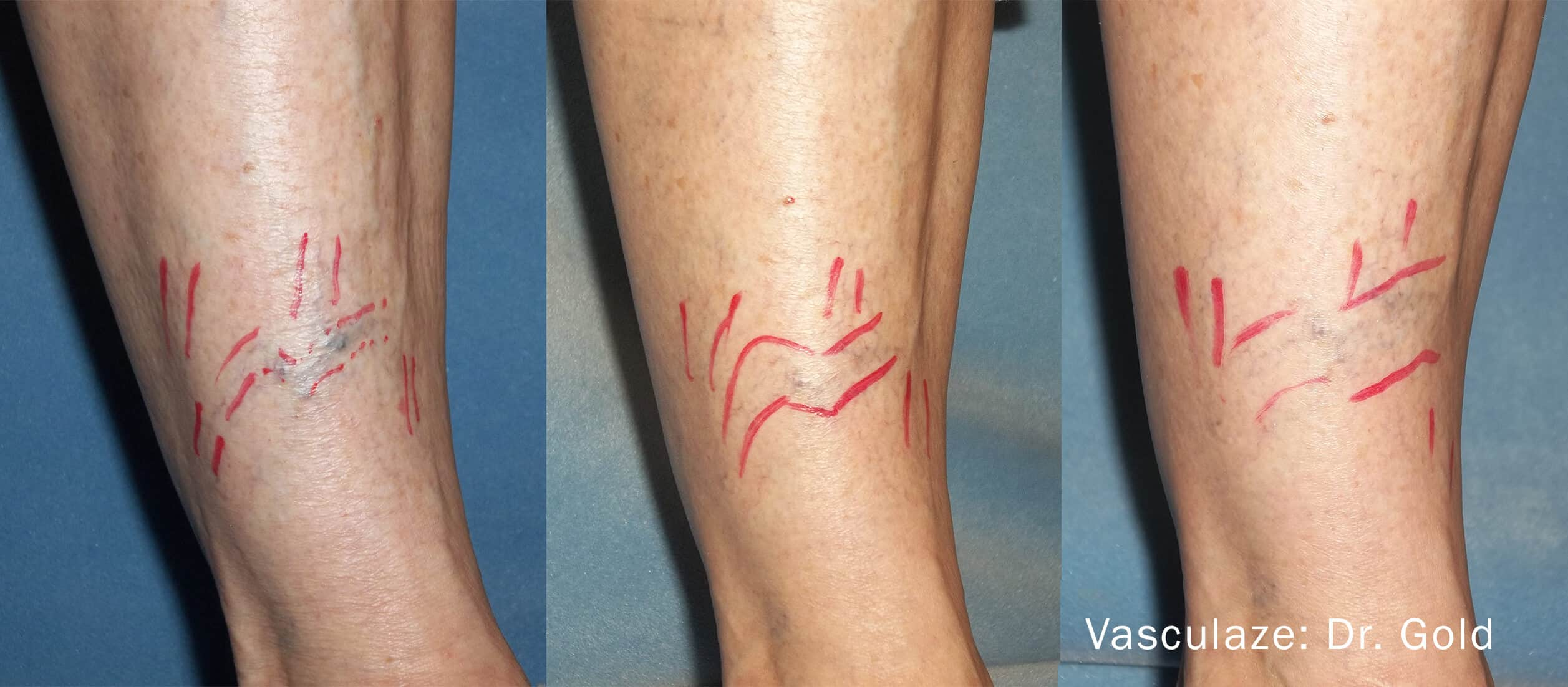 Leg Vein Reduction - Patient Before and After Gallery – Photo 12