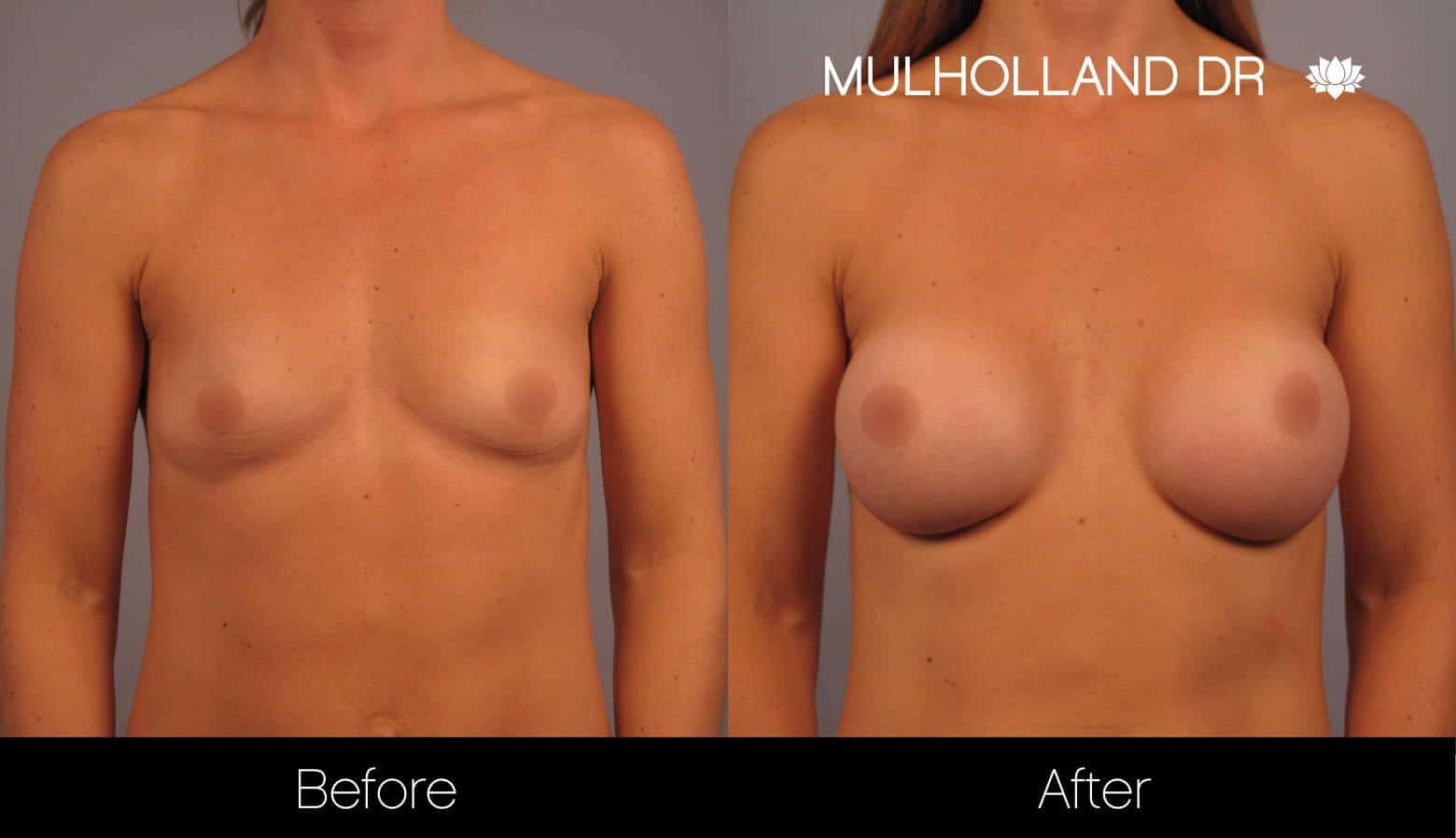 Breast Augmentation - Before and After Gallery – Photo 12