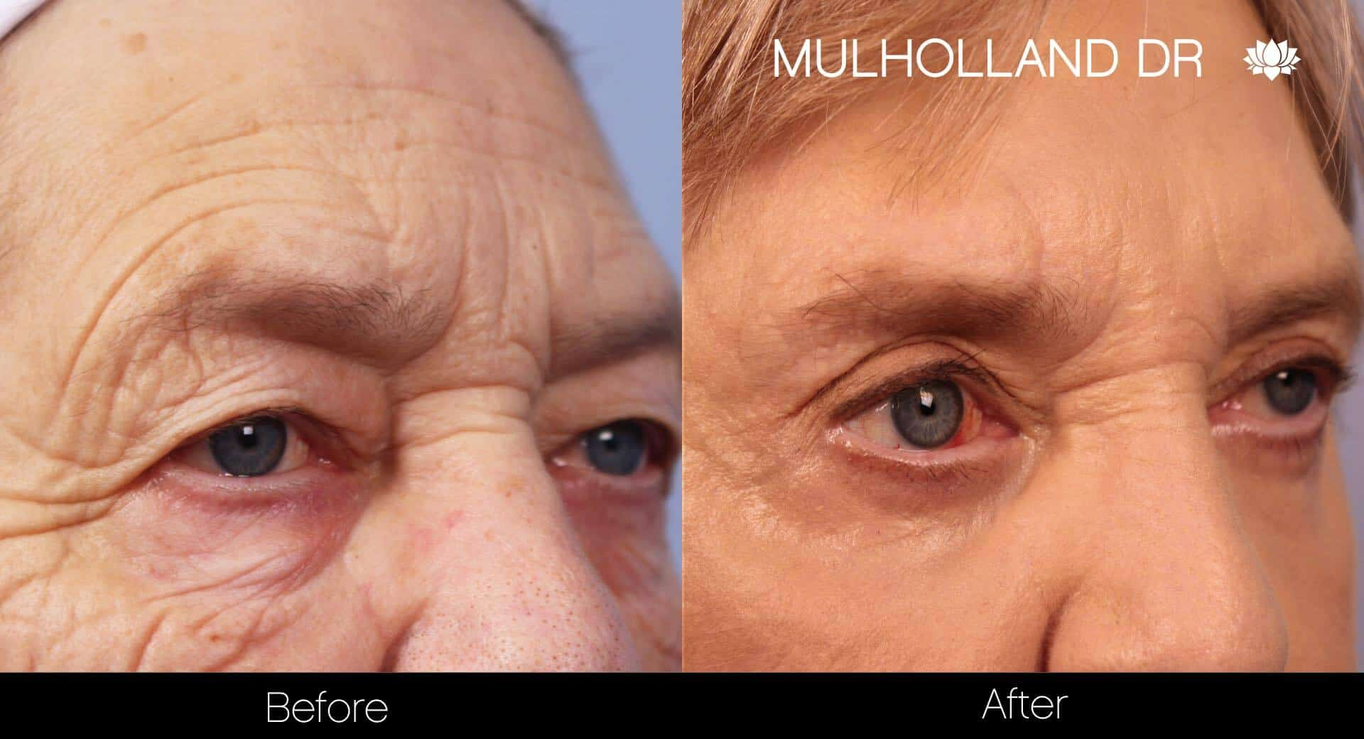 Blepharoplasty - Before and After Gallery – Photo 12