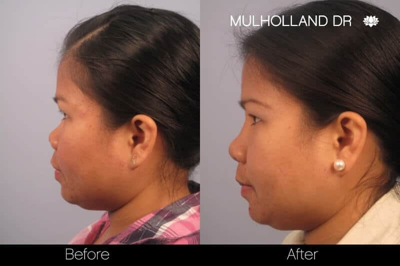 5 Minute Nose Job - Before and After Gallery – Photo 13