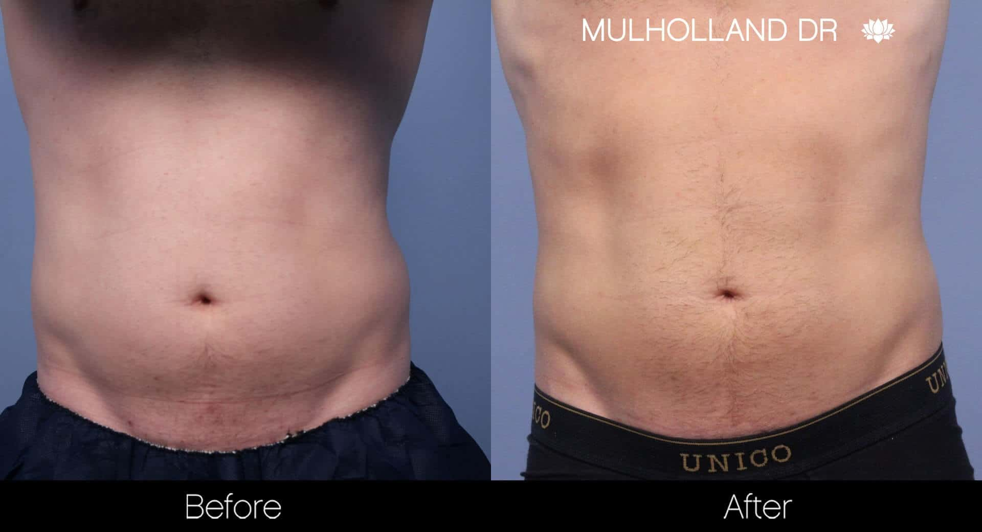 SculpSure - Before and After Gallery – Photo 14