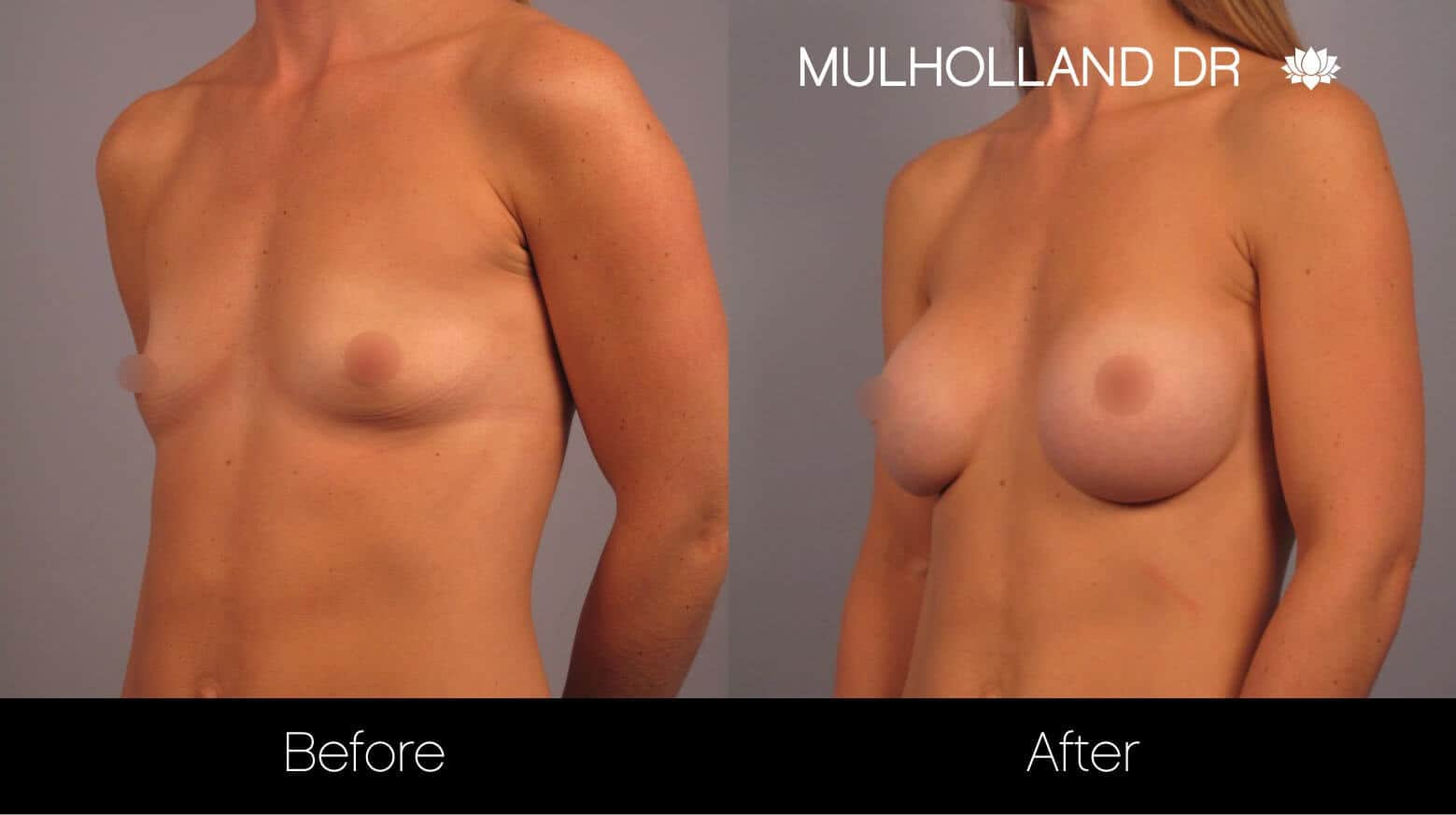 Breast Augmentation - Before and After Gallery – Photo 13