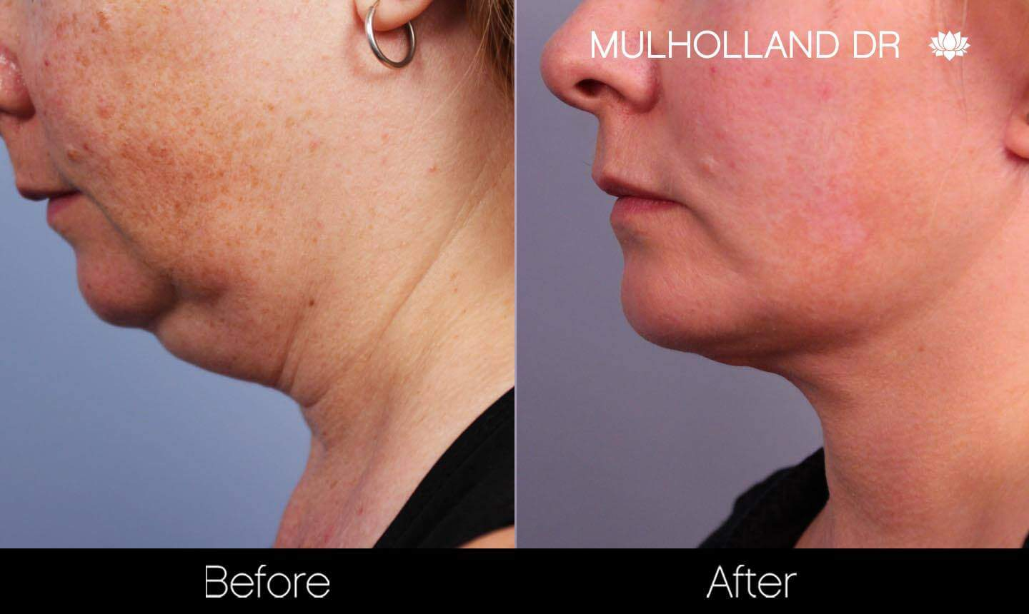 Non-Surgical Facelift - Before and After Gallery – Photo 14
