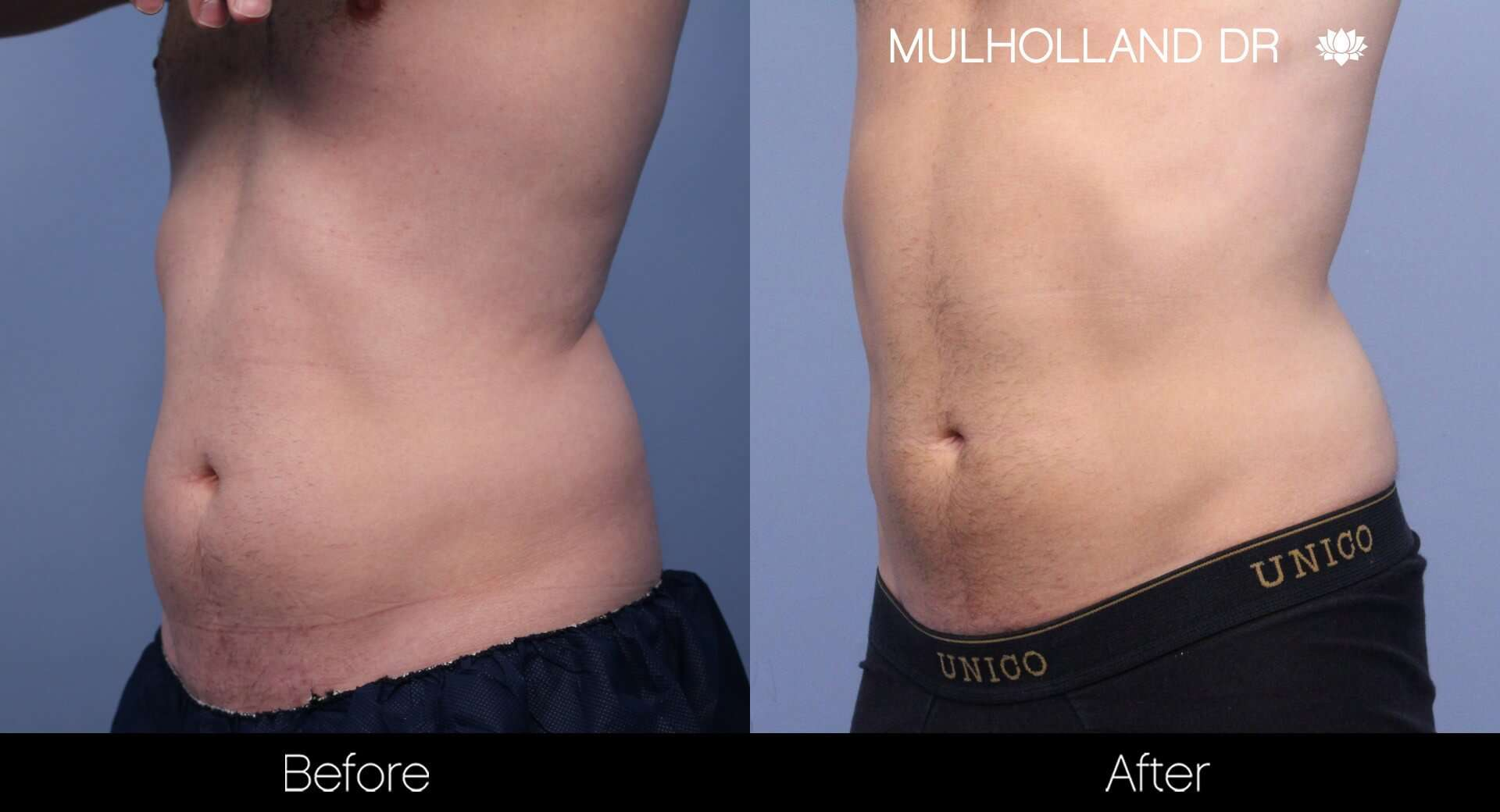 SculpSure - Before and After Gallery – Photo 15