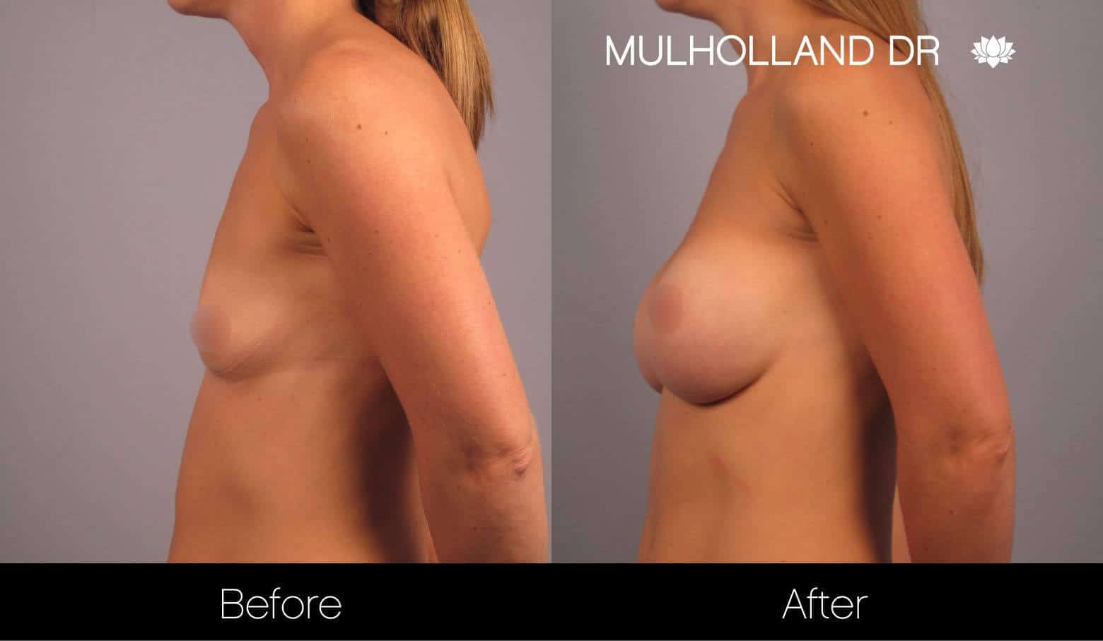 Breast Augmentation - Before and After Gallery – Photo 14