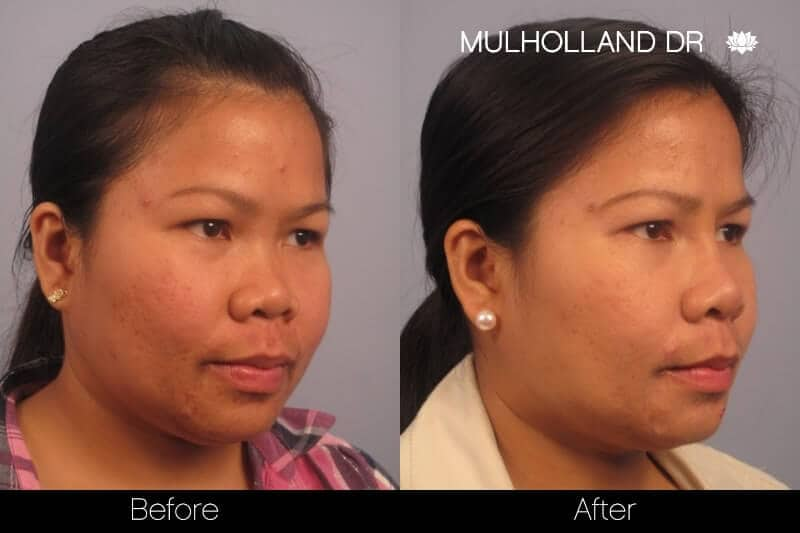 5 Minute Nose Job - Before and After Gallery – Photo 15
