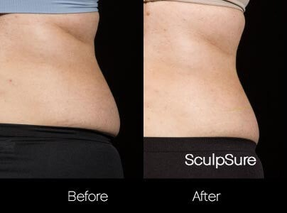 SculpSure - Before and After Gallery – Photo 18