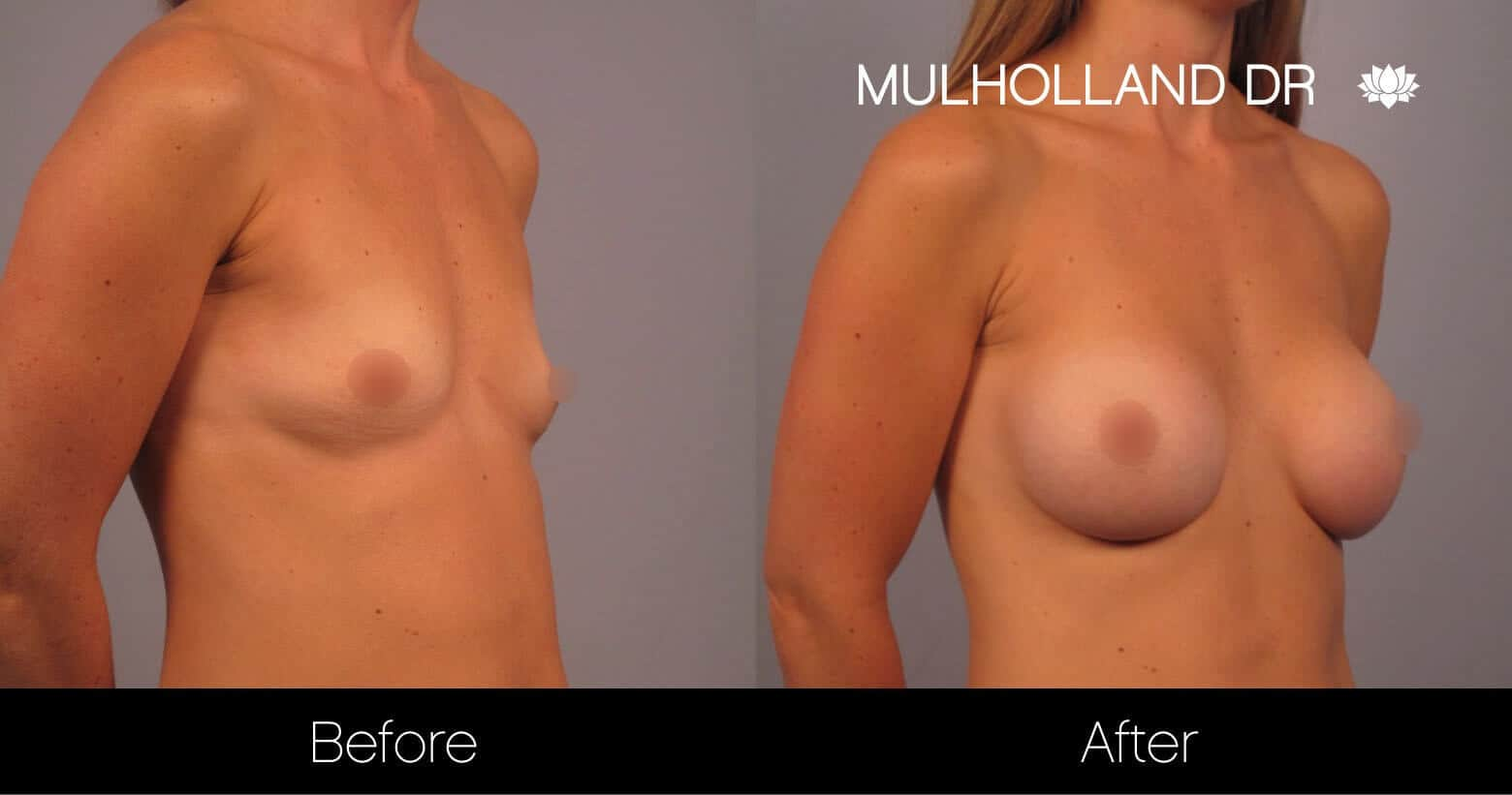 Breast Augmentation - Before and After Gallery – Photo 15