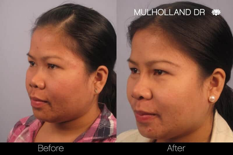 5 Minute Nose Job - Before and After Gallery – Photo 16