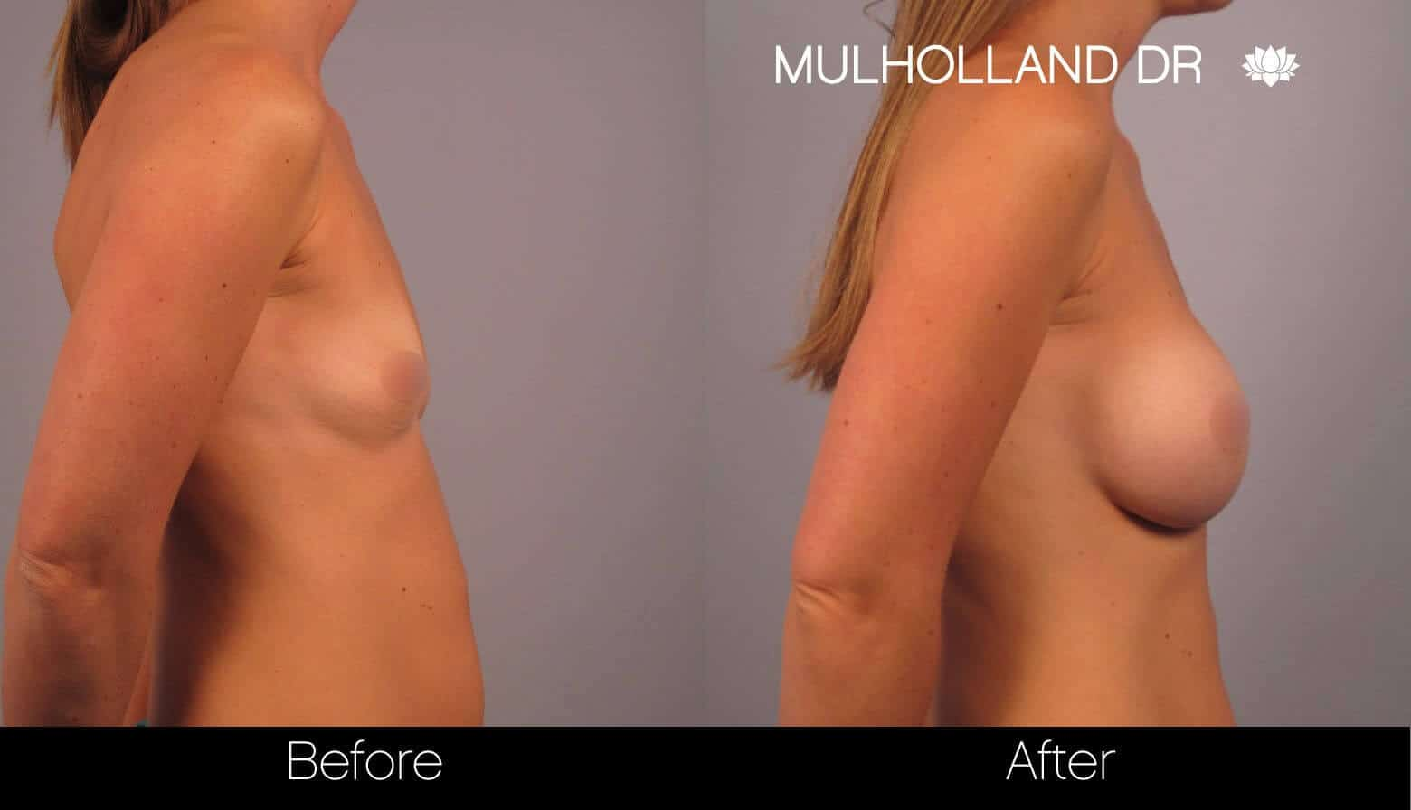 Breast Augmentation - Before and After Gallery – Photo 16