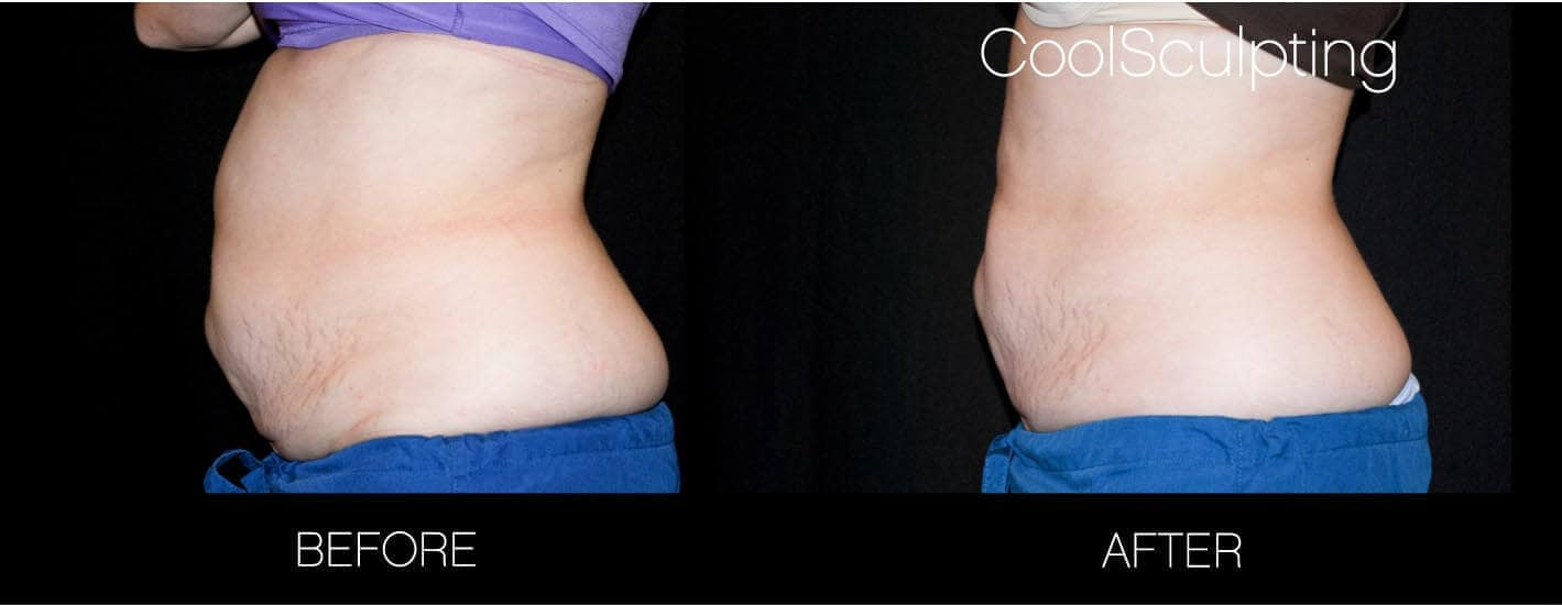 CoolSculpting - Before and After Gallery – Photo 17