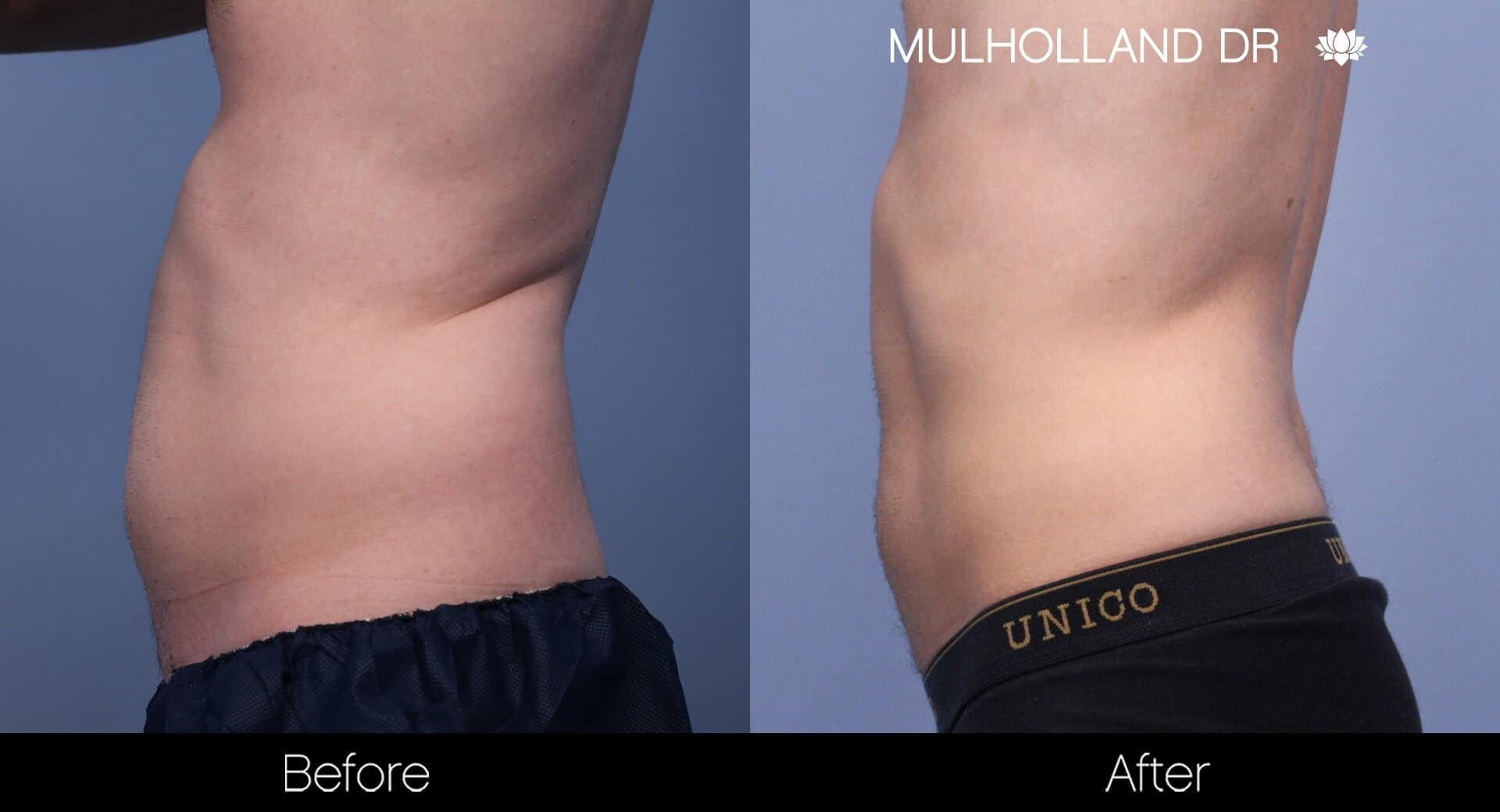 SculpSure - Before and After Gallery – Photo 16