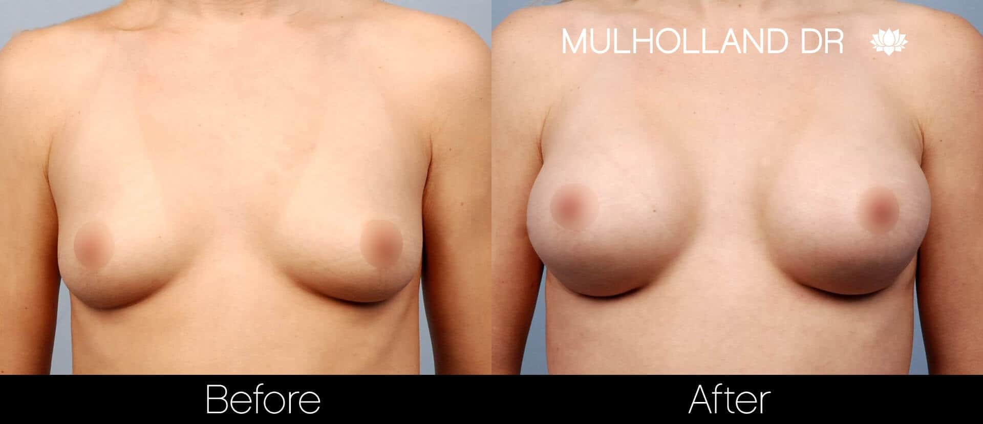 Breast Augmentation - Before and After Gallery – Photo 17