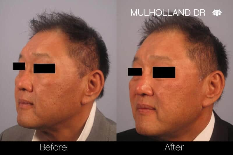 5 Minute Nose Job - Before and After Gallery – Photo 18