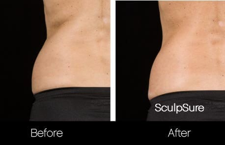 SculpSure - Before and After Gallery – Photo 19