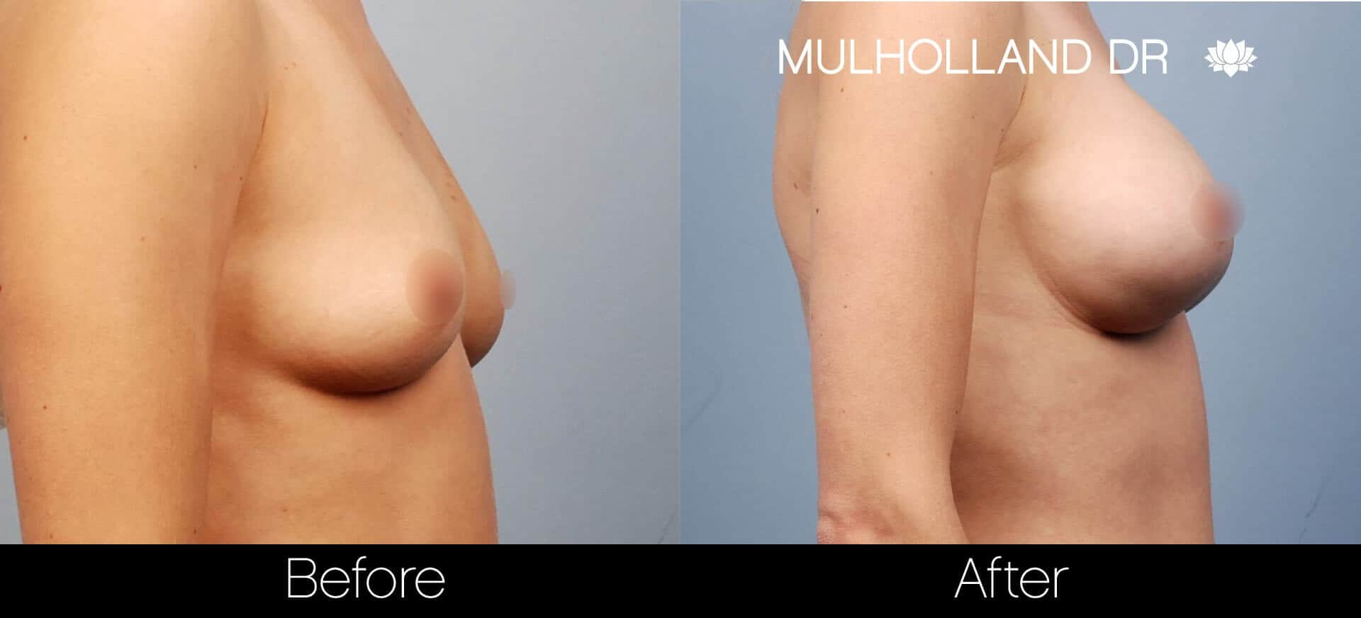 Breast Augmentation - Before and After Gallery – Photo 18