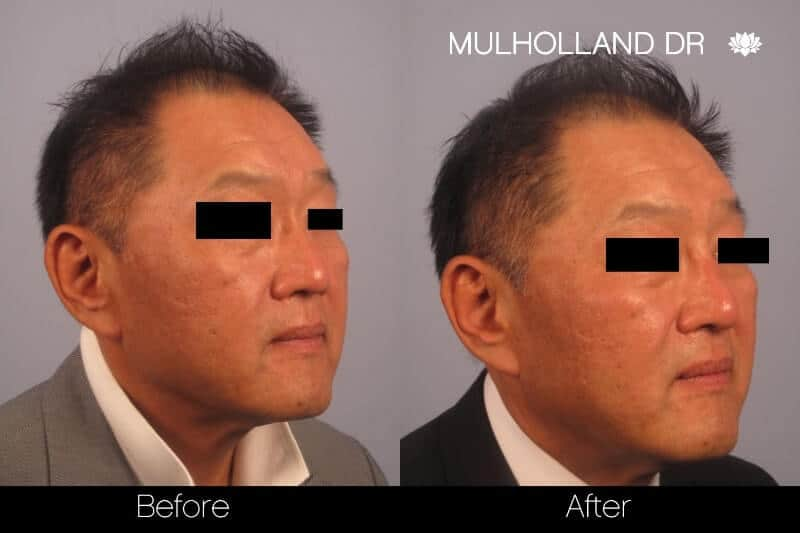 5 Minute Nose Job - Before and After Gallery – Photo 19