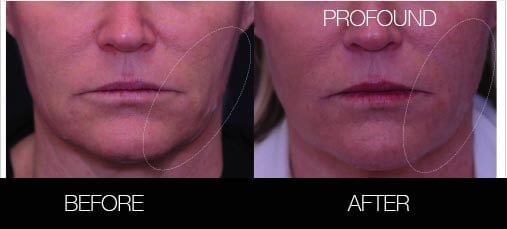 Non-Surgical Facelift - Before and After Gallery – Photo 20